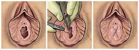 L'hymen : anatomie, dchirure et explications - aufeminincom