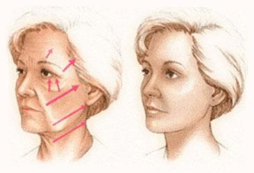 lifting cervico facial en tunisie