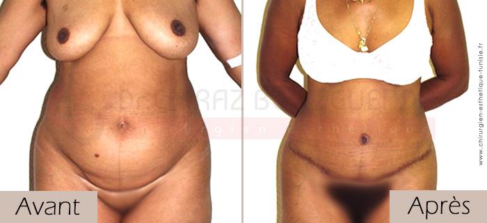 photos-avant-apres-patient4-chirurgie-esthetique-ventre-tunisie