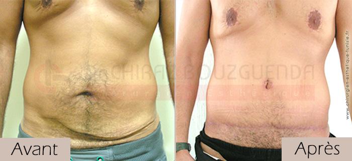 photos-avant-apres-patient6-chirurgie-esthetique-ventre-tunisie