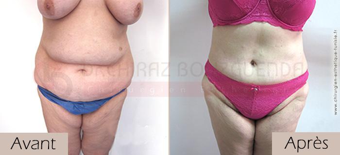 photos-avant-apres-patient7-chirurgie-esthetique-ventre-tunisie