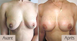 photos-avant-apres-patiente4-augmentation-mammaire-par-protheses-en-tunisie