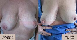 photos-avant-apres-patiente1-mamelons-ombiliques-tunisie