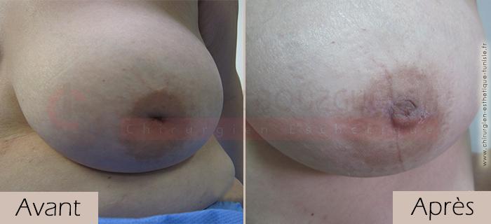 photos-avant-apres-patiente3-mamelons-ombiliques-tunisie