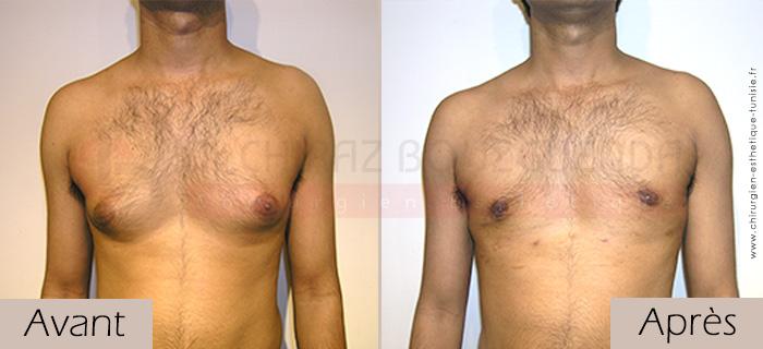 photos-avant-apres-patient1-reduction-mammaire-masculine-tunisie