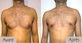 photos-avant-apres-patient1-reduction-mammaire-masculine-tunisie