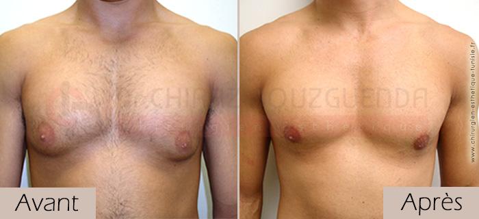 photos-avant-apres-patient2-reduction-mammaire-masculine-tunisie