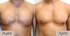 photos-avant-apres-patient2-reduction-mammaire-masculine-tunisie