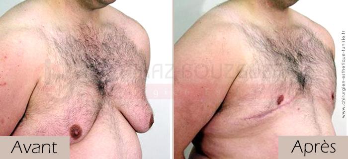 photos-avant-apres-patient3-reduction-mammaire-masculine-tunisie