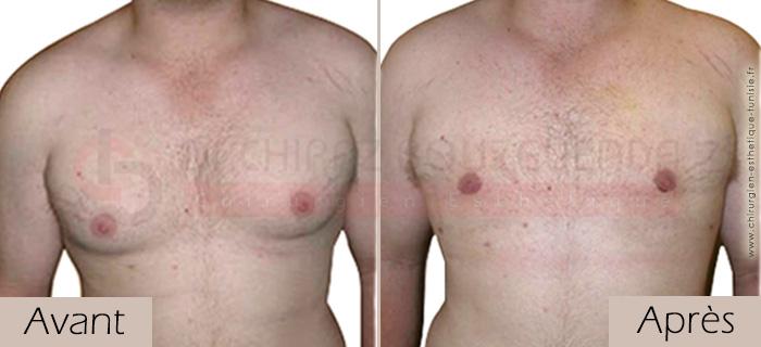 photos-avant-apres-patient4-reduction-mammaire-masculine-tunisie