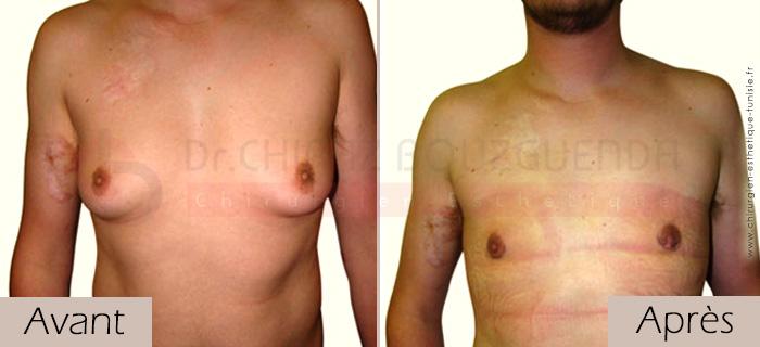 photos-avant-apres-patient5-reduction-mammaire-masculine-tunisie
