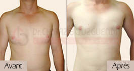 photos-avant-apres-patient6-reduction-mammaire-masculine-tunisie