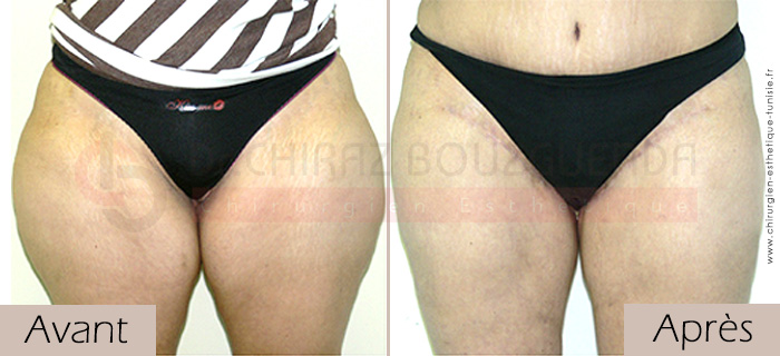 photos-avant-apres-patient1-chirurgie-lifting-cuisses-tunisie