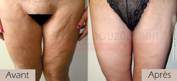 photos-avant-apres-patient2-chirurgie-lifting-cuisses-tunisie