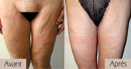 photos-avant-apres-patient2-chirurgie-lifting-cuisses-tunisie