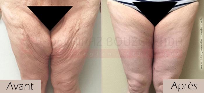 photos-avant-apres-patient3-chirurgie-lifting-cuisses-tunisie