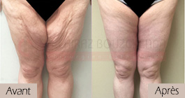 photos-avant-apres-patient3-chirurgie-lifting-cuisses-tunisie