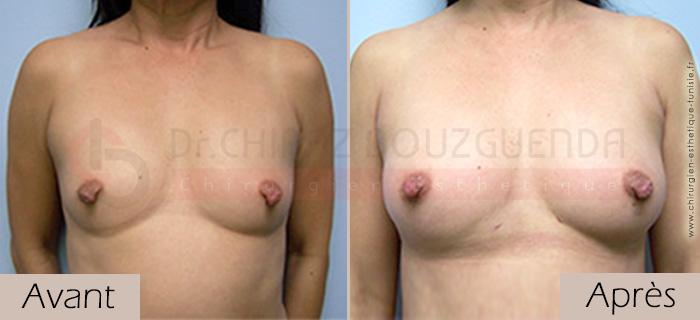 photos-avant-apres-patiente3-augmentation-mammaire-par-lipofilling-tunisie