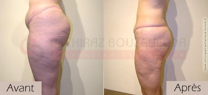 photos-avant-apres-patient11-liposuccion-silhouette-tunisie