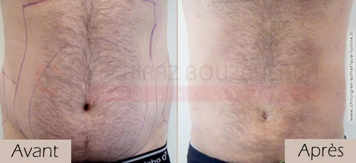 photos-avant-apres-patient12-liposuccion-silhouette-tunisie