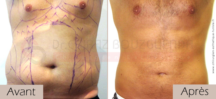 photos-avant-apres-patient14-liposuccion-silhouette-tunisie