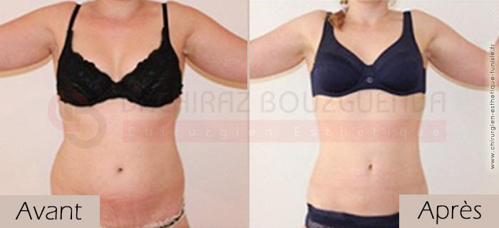 photos-avant-apres-patient2-liposuccion-silhouette-tunisie