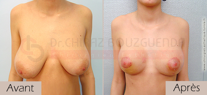 photos-avant-apres-patient2-reduction-seins-en-tunisie