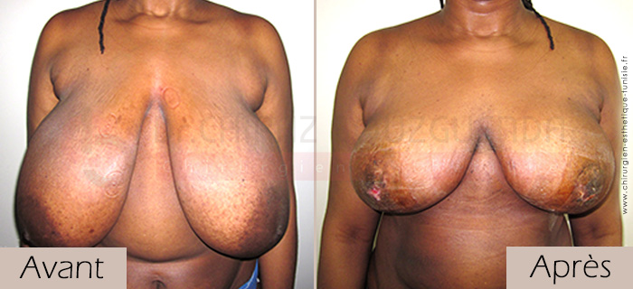 photos-avant-apres-patient3-reduction-seins-en-tunisie