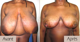 photos-avant-apres-patient3-reduction-seins-en-tunisie