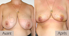 photos-avant-apres-patient5-reduction-seins-en-tunisie
