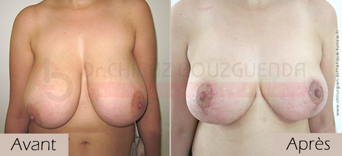 photos-avant-apres-patient6-reduction-seins-en-tunisie