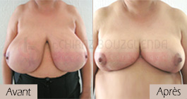 photos-avant-apres-patient8-reduction-seins-en-tunisie
