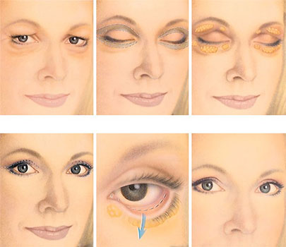 blepharoplastie tunisie chirurgie des paupi res en tunisie. Black Bedroom Furniture Sets. Home Design Ideas