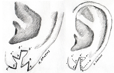reparation-lobes-oreilles-fendues-tunisie
