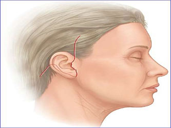 cicatrices-apres-lifting-cervico-facial
