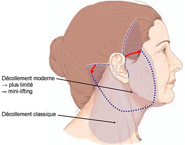 decollement-lifting-cervico-facial-tunisie