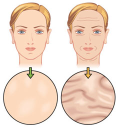 injections-botox-tunisie