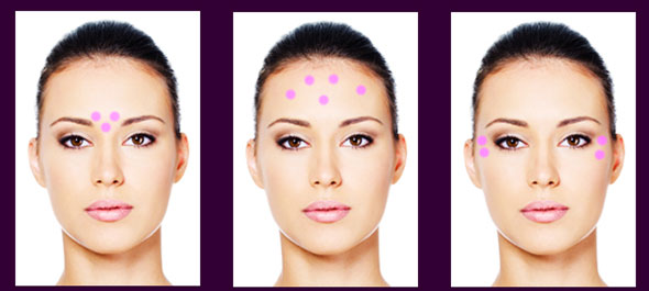zones-injections-botox