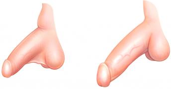 Chirurgie esthtique au masculin - Osez la chirurgie